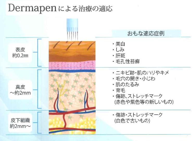 ダーマペンによる治療の適応