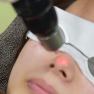 ピコレーザー鼻毛穴施術