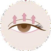 切開法にて糸で二重を形成した目の様子