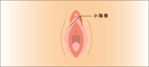 陰唇 でき もの 小