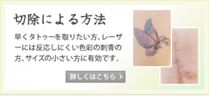 切除による方法。早くタトゥーを取りたい方、レーザーには反応しにくい色彩の刺青の方、サイズの小さい方に有効です。