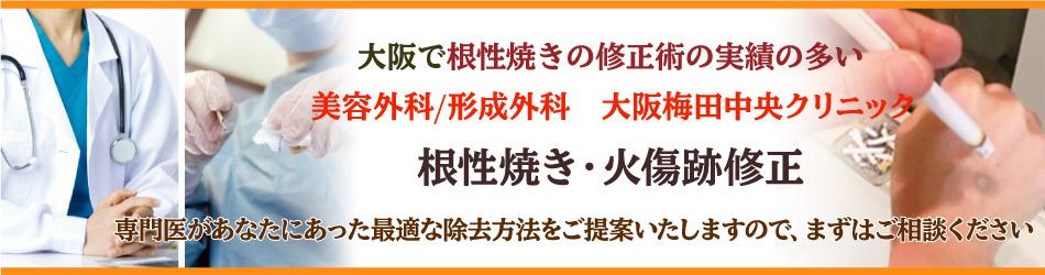 大阪で根性焼きの修正術の実績の多い大阪梅田中央クリニック